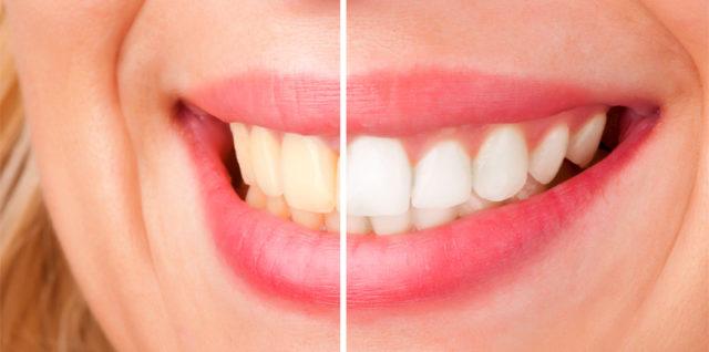 USA-kozmetika.com - избелване на зъби с пасти и ленти Crest